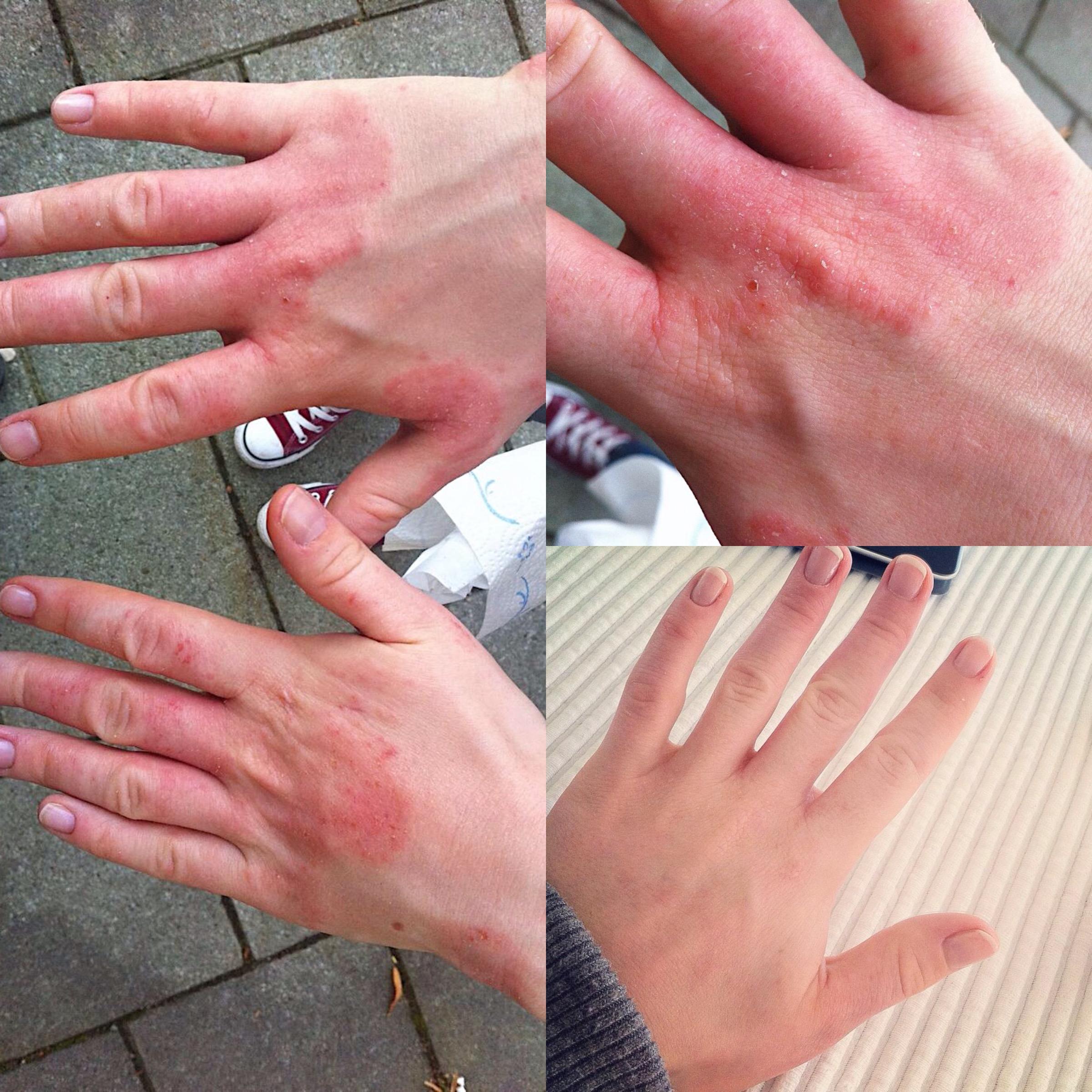före och efter - Q for Skin