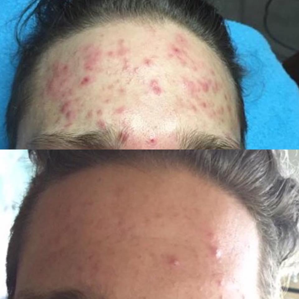 akne före och efter - ess probiotic skincare