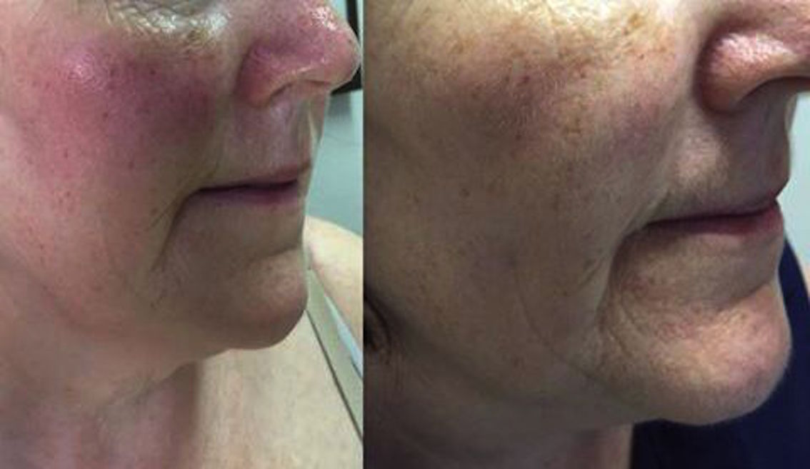rosacea före och efter - esse probiotic skincare