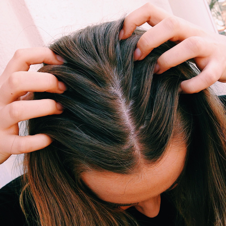 hårbottenbesvär - schampo